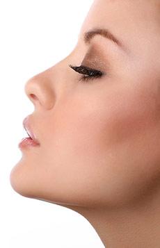 Ρινοπλαστική - Πλαστική μύτης